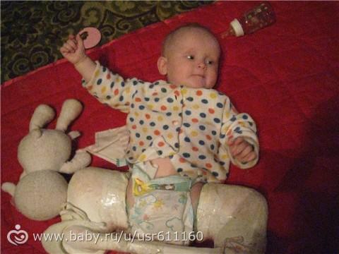 У ребенка одна нога короче другой как лечить