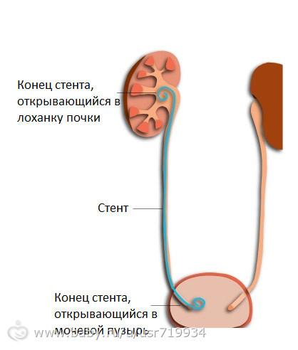 Стенд в почке у беременных