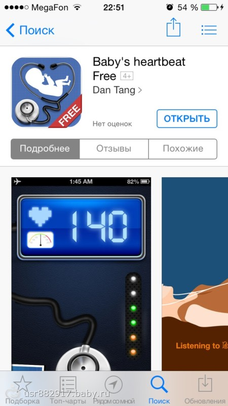 Фарингоскоп