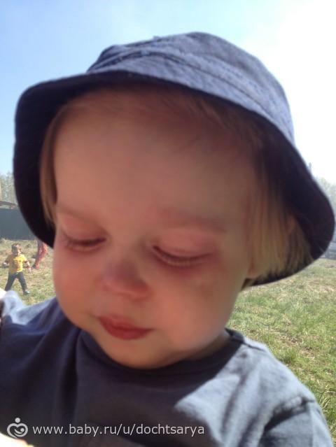 Гомеопатические мази при атопическом дерматите у детей