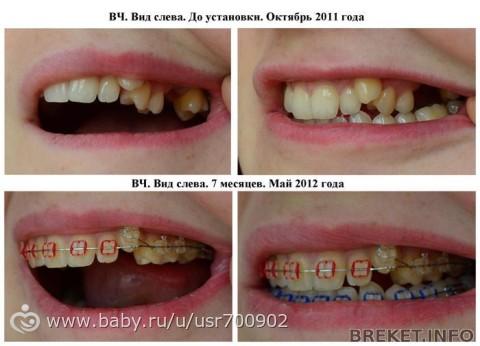 Как сделать так чтобы зуб выпал в домашних условиях - Авто Шарм