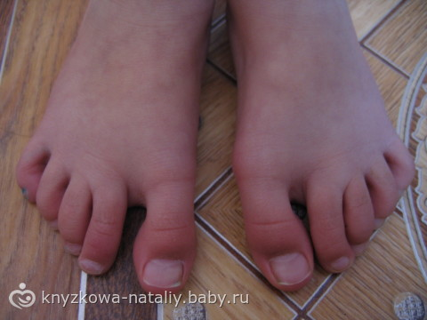 На ноге выпирает косточка