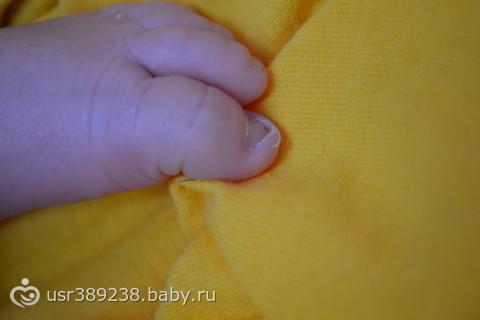 Врастают ногти у новорожденного на ногах