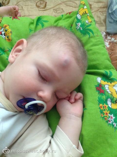 Ребенок ударился лбом и вылезла шишка что делать