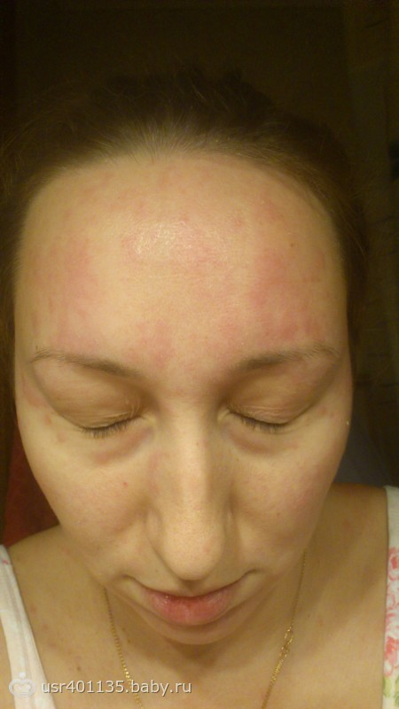 аллергия после родов на лице