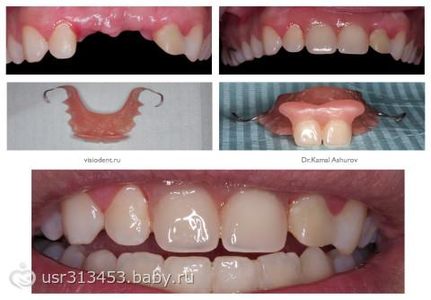 как выглядит съемный зубной протез фото