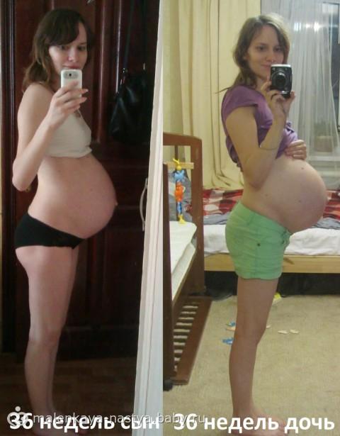 Умеренное многоводие при беременности в 36 недель