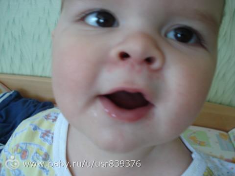 сыпь у ребенка под носом фото