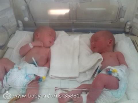 Двойня 35 неделя беременности