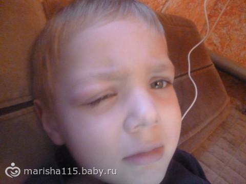 аллергия у ребенка на комариные укусы фото
