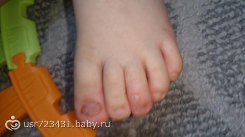 Как вывести грибок ног у ребенка