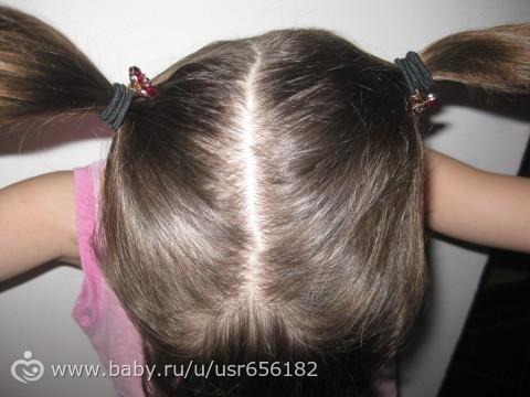 У ребенка асимметрия черепа