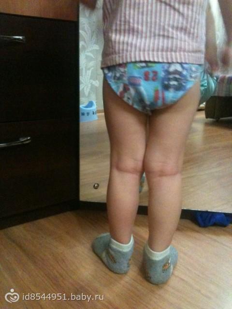 Ребёнок при ходьбе ставит носки внутрь