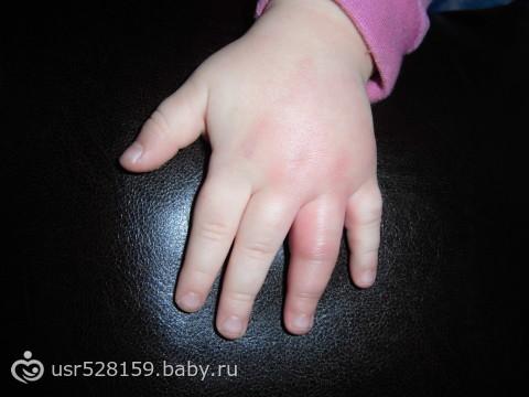 От укуса опух палец что делать 134