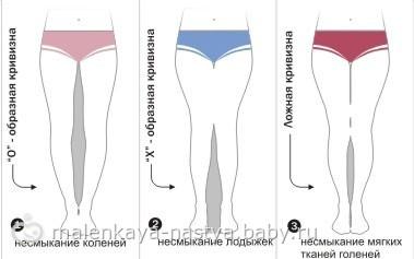 фото кривые ноги девушек
