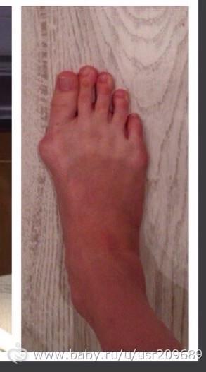 Причины образования вальгусной деформации большого пальца стопы