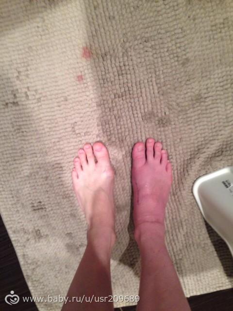Операция на ноге косточки